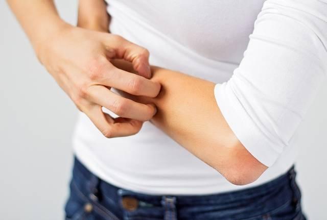 Choroby od klimatyzacji alergia
